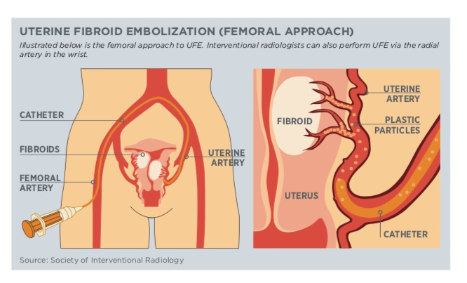 Uterine Fibroid Embolization Femoral Approach