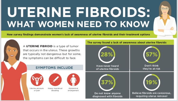What you should know about Uterine Fibroids