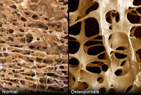 Porous Bones from Osteoporosis